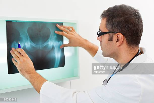 Mid adult doctor examining X-ray image