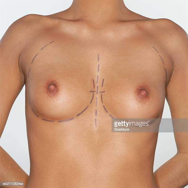 mid section view of a woman with her breasts marked for plastic surgery