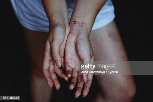 Midsection Of Person Showing Injured Hands
