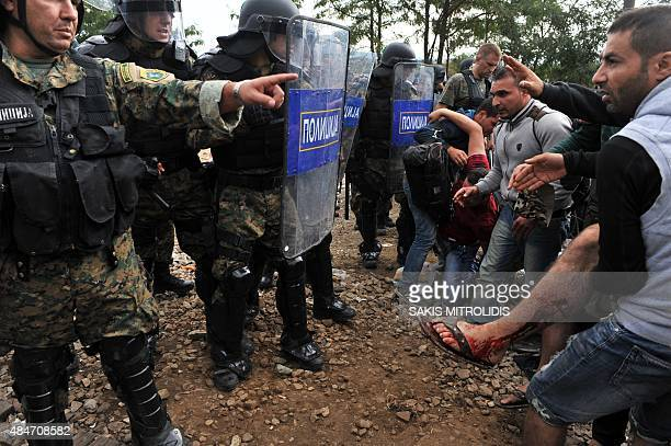 Migrants hold up an injured individual after clashes with Macedonian police near the town of Idomeni on the Greek Macedonian border on August 21 2015...