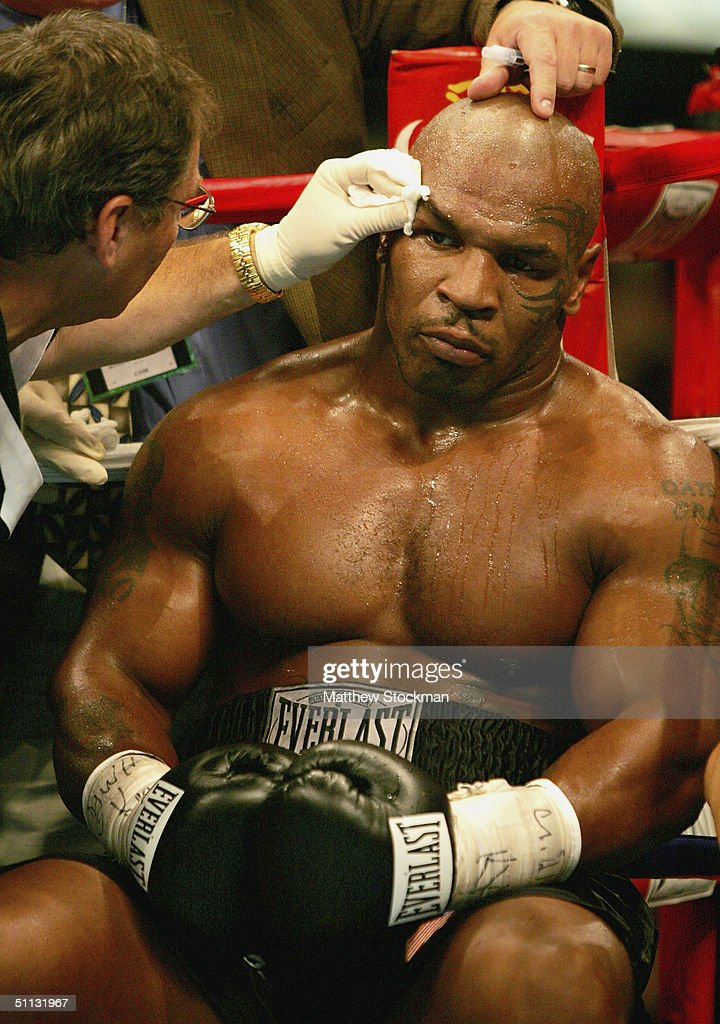 Mike Tyson receives treatment for cut over his eye after the third round against Danny Williams of Great Britain July 30, 2004 at Freedom Hall in Louisville, Kentucky.