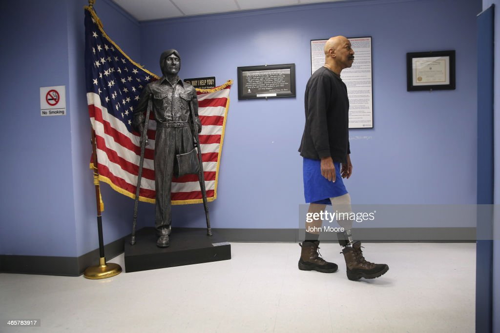 U.S. Military veteran and amputee Lloyd Epps walks after doctors serviced his prosthetic leg at the Veterans Administration (VA), hospital on January 29, 2014 in Manhattan, New York City. Epps, who lost his leg to an infection in 2010, wears a hightech custom prosthetic from the VA which powers his gait forward.