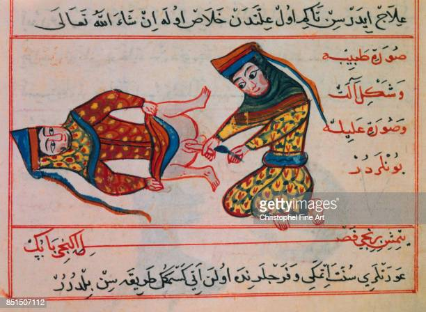 Miniature Midwife Operating on an Hermaphrodite Medical Illustration Paris Bibliotheque nationale