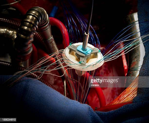 Mitral Valve Replacement Heart Surgery