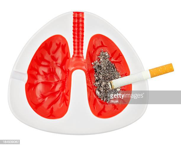 Model depicting lungs of a smoker with cigarette and ash