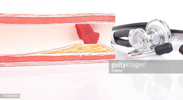 Model of arteriosclerosis with stethoscope