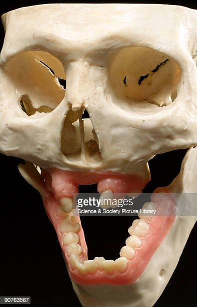 Model of front part of adult skull illustrating gross overdevelopment of mandible cleft palate hare lip and lack of maxillary development showing...