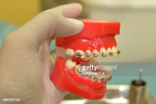 Orthodontic Jaw Wiring | Model Orthodontic Wire Stock Foto Thinkstock