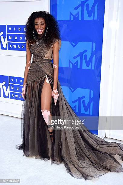 Model Winnie Harlow attends the 2016 MTV Video Music Awards at Madison Square Garden on August 28 2016 in New York City