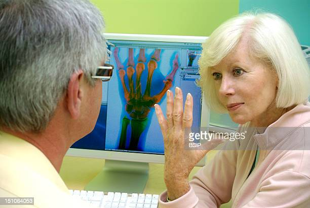 Models On Screen X Ray Of The Hand With A Fracture On The 3Rd And 4Th Metacarpus