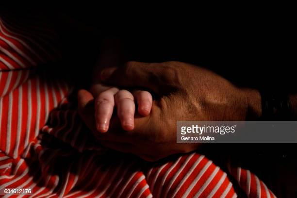 Mohamed Bzeek holds hands with his foster daughter who suffers from microcephaly in their home in Azusa on December 7 2026 The daughter who cannot...