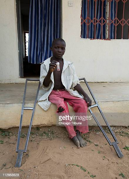 Mohammed Adumu who had Polio as a baby holds up a sample of his urine specimen in Nasarawa Nigeria February 16 2007 The bloody urine is the first...
