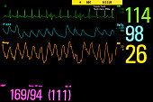 Vital signs monitoring in ICU unit.
