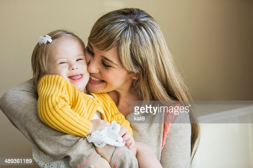 Mother and daughter with down syndrome