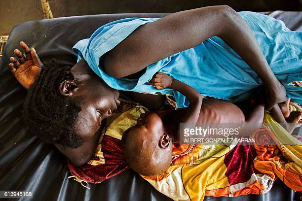 TOPSHOT A mother breastfeeds her child who suffers acute malnutrition at the clinic run by Doctors Without Borders in Aweil northern Bahr alGhazal...