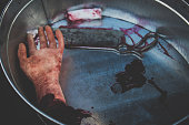 Moulage of cut-off hand lies in the blood in a basin together with medical saw by way of illustration the work of doctors, surgeons in wartime or scene of crime
