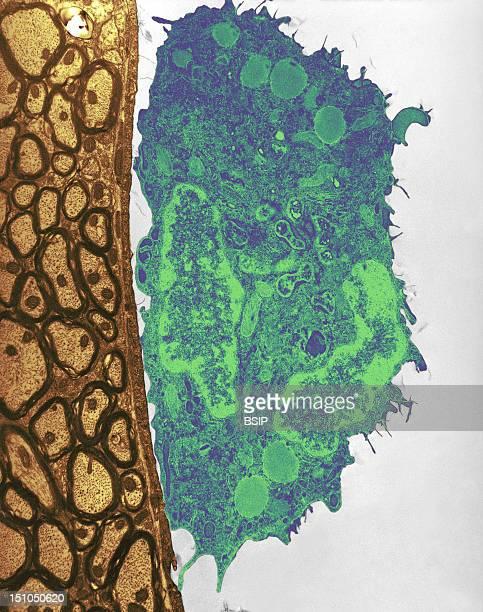 Mouse Macrophage Located In A Cerebral Capillary Experimentally Infected By Orientia Tsutsugamushi Colorized Tem Orientia Tsutsugamushi Formerly...