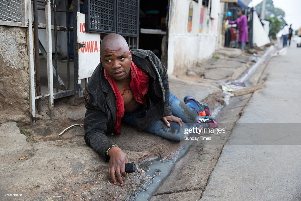 Mozambican national Emmanuel Sithole lies in the street after he was attacked by men in Alexandra Township on April 18 2015 in Alexandra South Africa...