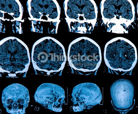 Mri Tomografía Cerebral Foto de stock | Thinkstock