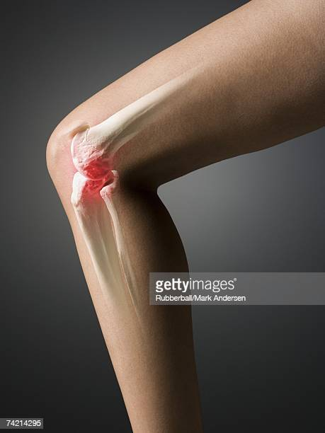 MRI-like image of knee with inflammation
