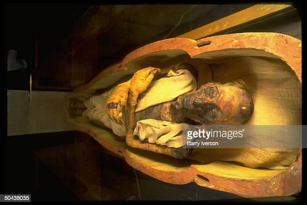Mummified body of Pharaoh Ramses II mummy evading destruction for 3000 yrs at Egyptian Museum