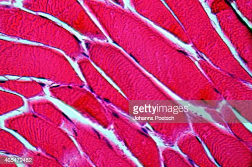 muscle cells at 1000times magnification stock photo | thinkstock, Muscles