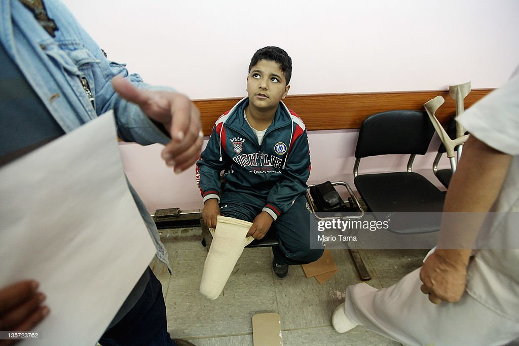 Mustafa Ahmed, 11, who was wounded by an American bomb during the 2003 U.S. invasion, is fitted for a new prosthetic lower leg at the Hospital for Physiotherapy on December 13, 2011 in Baghdad, Iraq. Iraq's health care system remains in shambles following two decades of war and economic sanctions. Following the 2003 U.S. invasion, thousands of physicians fled the country while others were killed. Some physicians have since returned but there is still a critical shortage of doctors. Iraq is transitioning nearly nine years after the 2003 U.S. invasion and subsequent occupation. American forces are now in the midst of the final stage of withdrawal from the war-torn country. At least 4,485 U.S. military personnel have died in service in Iraq. According to the Iraq Body Count, more than 100,000 Iraqi civilians have died from war-related violence.