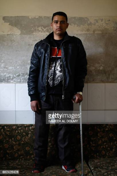Mute 17yearold Syrian Adnan who lost both legs in 2014 following an airstrike as he was walking towards his father's store from school poses for a...