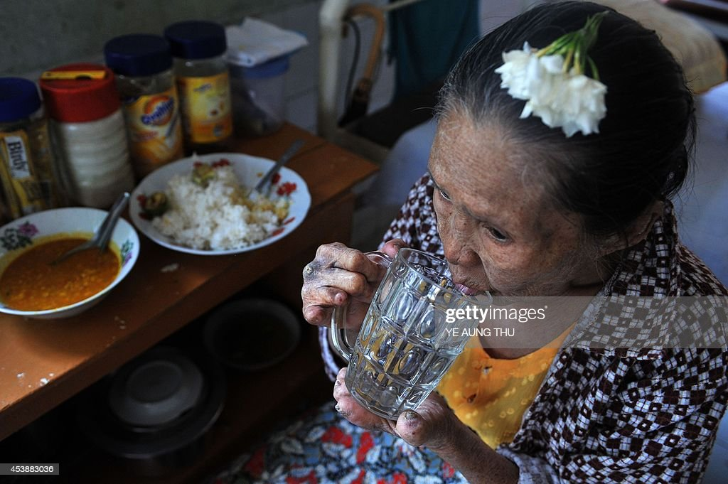 MyanmarhealthleprosyFEATURE by Kelly Macnamara A patient drinks a beverage at the Mawlamyine Christian leprosy hospital in Mawlamyine taken on March...