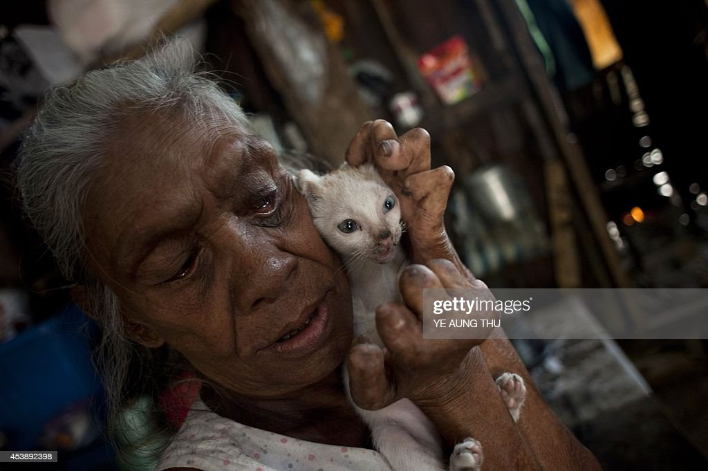 MyanmarhealthleprosyFEATURE by Kelly Macnamara A patient holds a kitten at a leprosy camp on the outskirts of Yangon on June 13 2014 Myanmar reached...