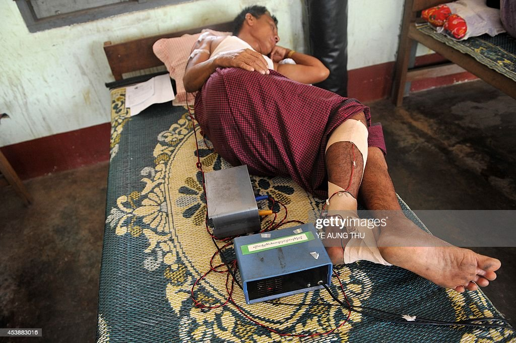 MyanmarhealthleprosyFEATURE by Kelly Macnamara A patient lays on a bed at the Mawlamyine Christian leprosy hospital in Mawlamyine taken on March 13...