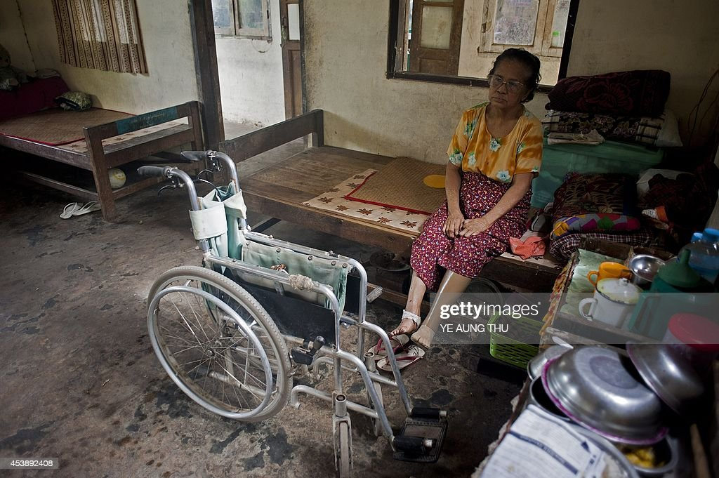 MyanmarhealthleprosyFEATURE by Kelly Macnamara A patient rests at a leprosy camp on the outskirts of Yangon on June 13 2014 Myanmar reached socalled...