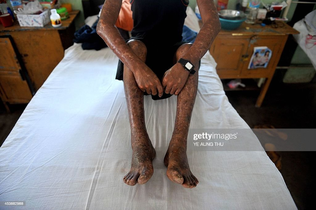 MyanmarhealthleprosyFEATURE by Kelly Macnamara A patient sits on a bed at the Mawlamyine Christian leprosy hospital in Mawlamyine taken on March 13...