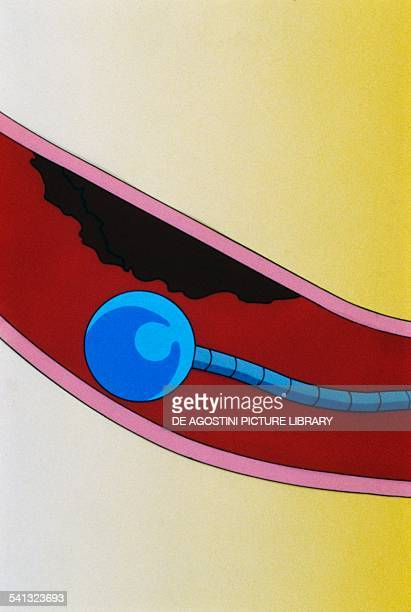 Myocardial infarction restoring blood flow throught a catheter with inflatable end design