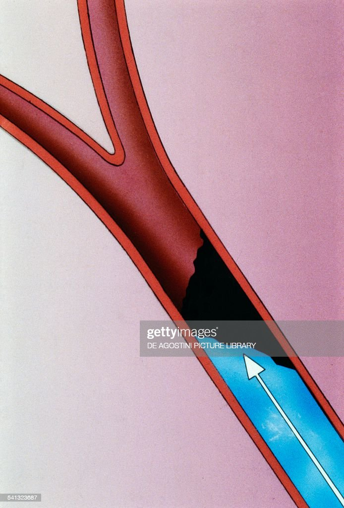 Myocardial infarction surgical treatment involves the injection of a substance to dissolve the thrombus into the blood vessel occluded drawing