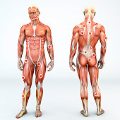 Myofascial trigger points, also known as trigger points, are described as hyperirritable spots in the fascia surrounding skeletal muscle. They are associated with palpable nodules in taut bands of mus