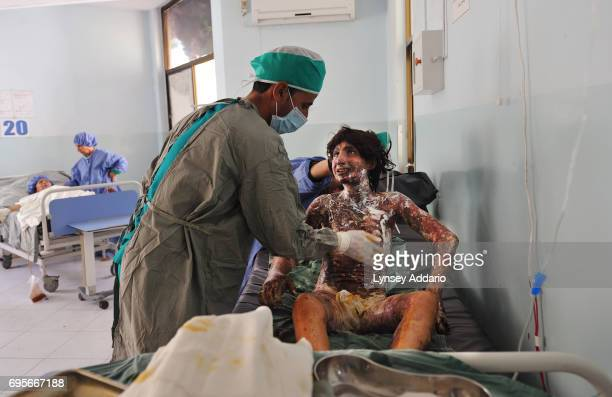 Najiba who has been married 6 months screams in pain as nurse Zaidullah Zia changes her bandages in the burn center of the Herat Regional Hospital in...