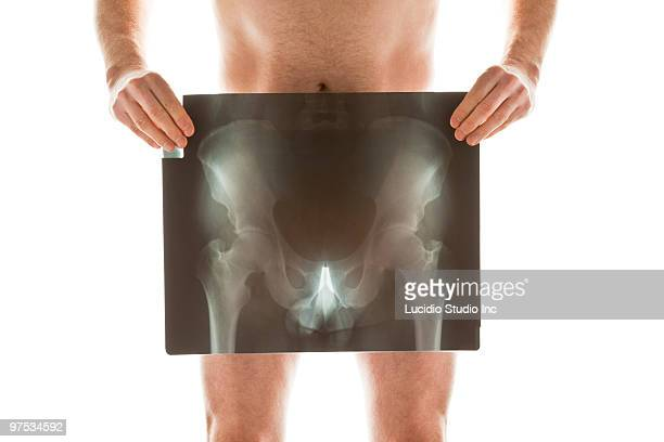 Naked man holding his hip Xray in front of himself