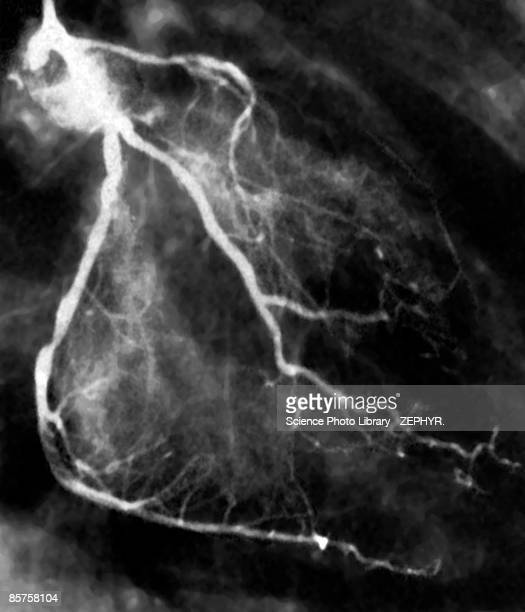 Narrowed coronary arteries (B&W)
