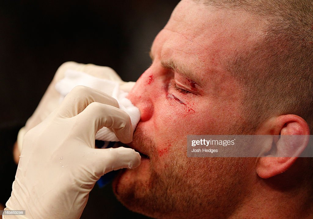 Nate Marquardt is treated after his knockout loss to Jake Ellenberger in their welterweight bout during the UFC 158 event at Bell Centre on March 16, 2013 in Montreal, Quebec, Canada.