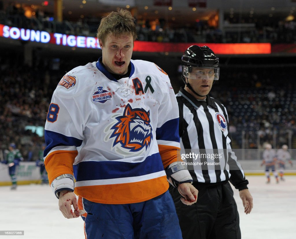 Nathan McIver #8 of the Bridgeport Sound Tigers skates off the ice after breaking his nose in a fight during an American Hockey League game against the Connecticut Whale on March 3, 2013 at the Webster Bank Arena at Harbor Yard in Bridgeport, Connecticut.