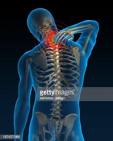 Dolore al collo : Foto stock