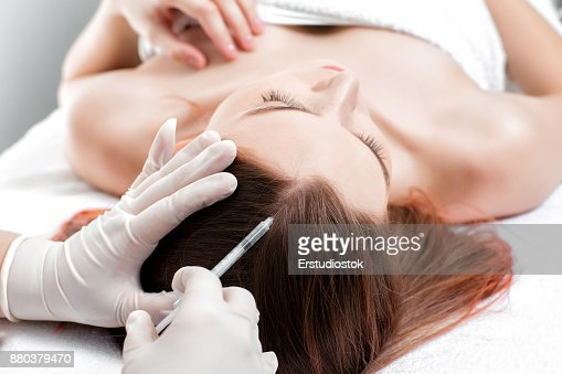 ニードル メソセラピー。化粧品されて女性の頭の中に注入します。 : ストックフォト