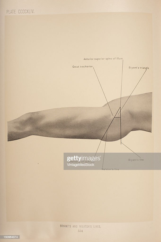 Nelaton's line passes from the anterior superior spine of the ilium to the tuberosity of the ischium and corsses the top of the great trochanter 1903...