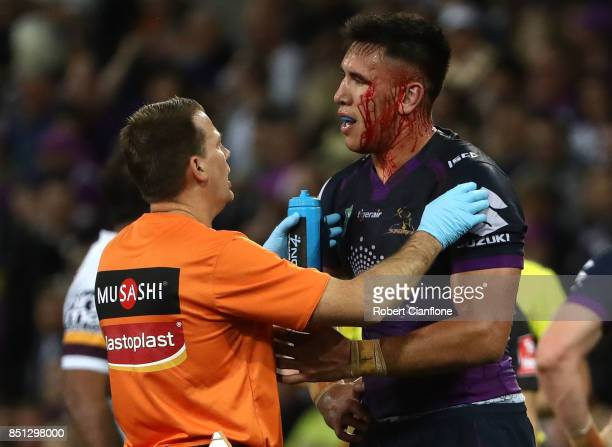 Nelson AsofaSolomona of the Storm is seen with blood on his face during the NRL Preliminary Final match between the Melbourne Storm and the Brisbane...