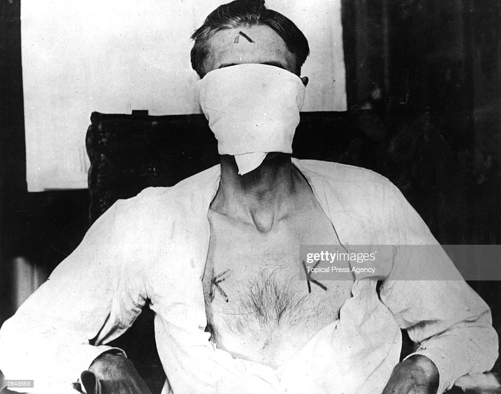 Nelson Burroughs who was kidnapped by members of the American white supremacist movement, the Ku Klux Klan and branded with hot irons because he refused to renounce his Catholic vows.