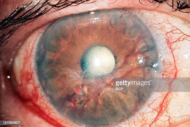 Neovascular Glaucoma