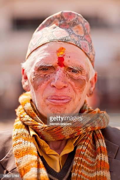 Nepali man with vitiligo
