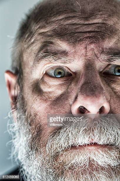 Nervous Raised Eyebrow Flaky Skin Senior Adult Man Looking Scared
