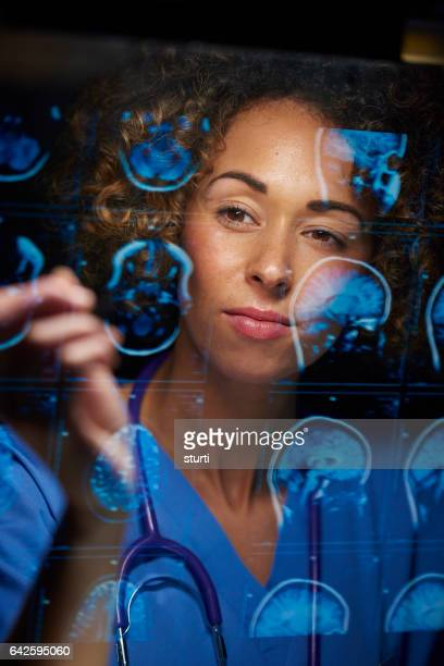 neurosurgeon checking mri scans